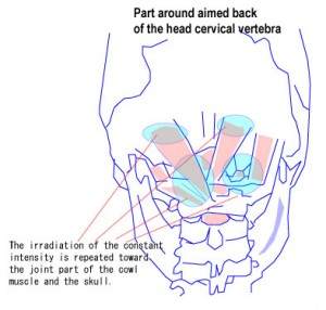 Technique for aiming at back of the head and cervical vertebra.